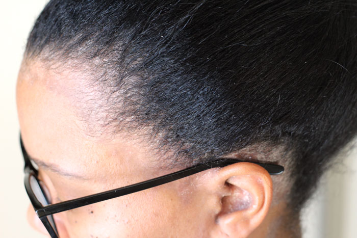 sideview of hair and scalp during psoriasis outbreak